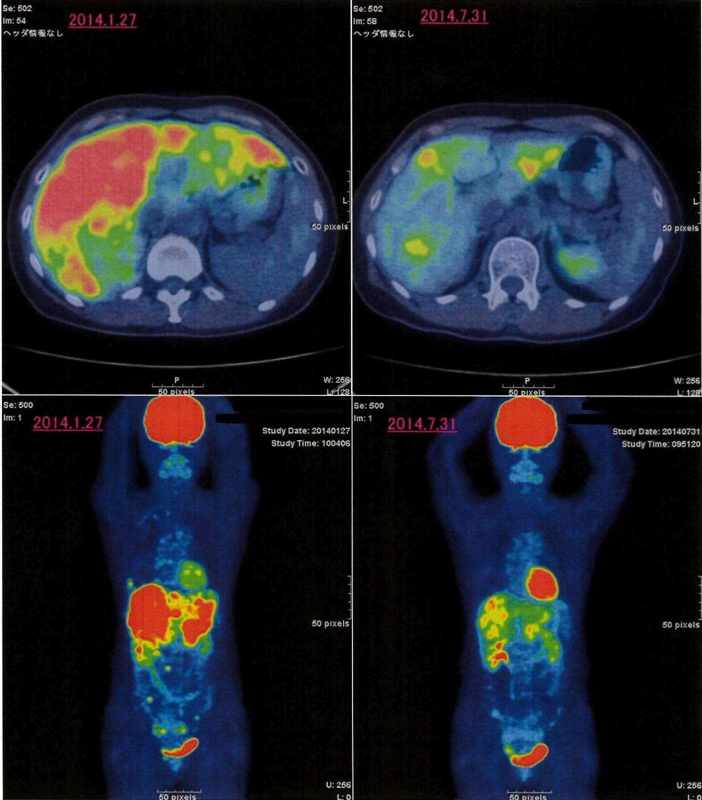 肝転移を伴う再発乳癌PG