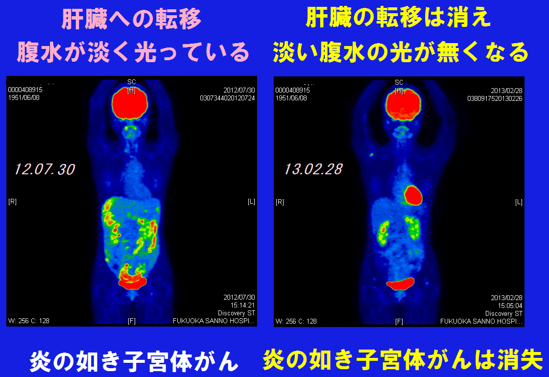 PET-CT12Jul30~13Feb28字PG